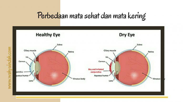 beda mata sehat dan mata kering